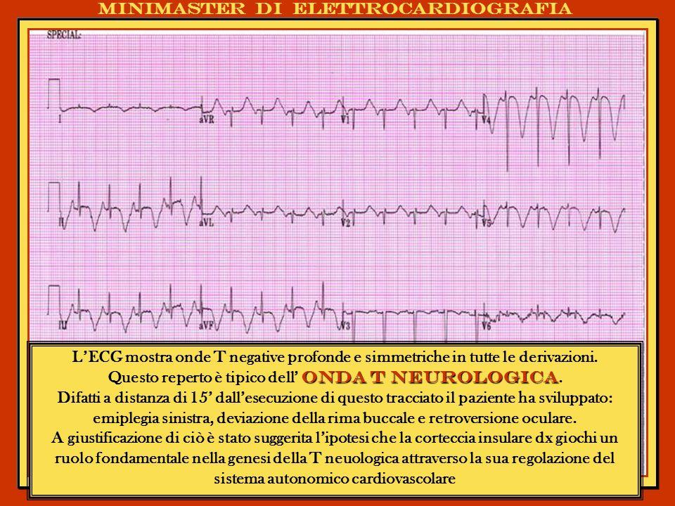 Minimaster di elettrocardiografia LECG mostra onde T negative profonde e simmetriche in tutte le derivazioni. onda T neurologica Questo reperto è tipi