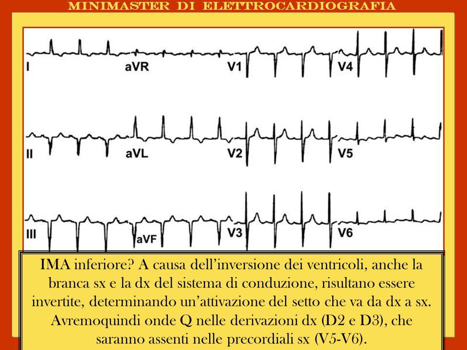 Minimaster di elettrocardiografia IMA inferiore? A causa dellinversione dei ventricoli, anche la branca sx e la dx del sistema di conduzione, risultan