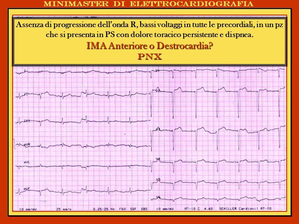 Minimaster di elettrocardiografia Assenza di progressione dellonda R, bassi voltaggi in tutte le precordiali, in un pz che si presenta in PS con dolor