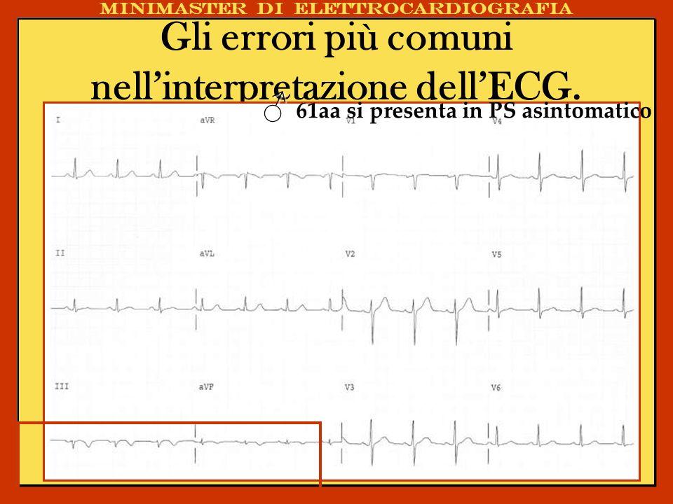 Gli errori più comuni nellinterpretazione dellECG. Caso Clinico Minimaster di elettrocardiografia 61aa si presenta in PS asintomatico