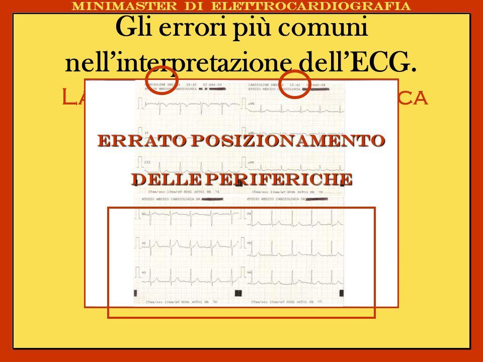 Gli errori più comuni nellinterpretazione dellECG. La registrazione ECGrafica Minimaster di elettrocardiografia Errato posizionamento delle periferich