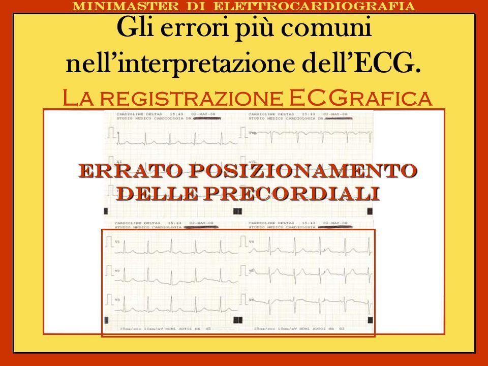 Gli errori più comuni nellinterpretazione dellECG. La registrazione ECGrafica Minimaster di elettrocardiografia Errato posizionamento delle precordial
