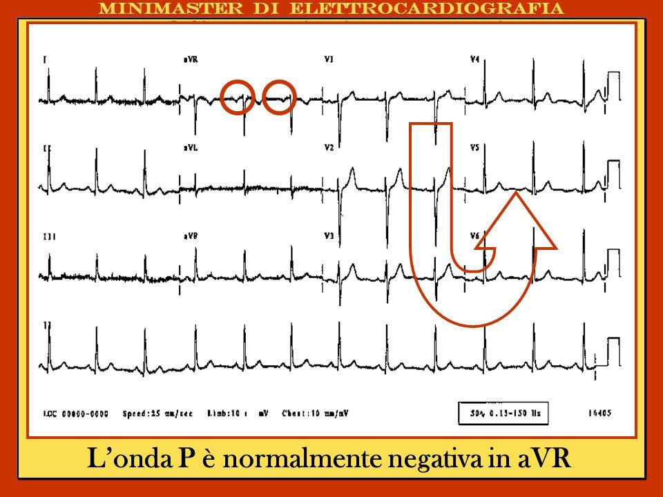 Gli errori più comuni nellinterpretazione dellECG. La Registrazione ECGrafica Londa P è normalmente negativa in aVR Minimaster di elettrocardiografia