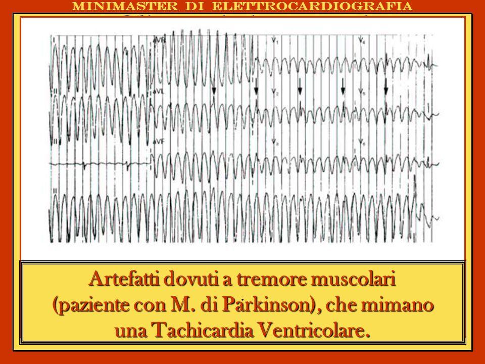 Minimaster di elettrocardiografia Assenza di progressione dellonda R, bassi voltaggi in tutte le precordiali, in un pz che si presenta in PS con dolore toracico persistente e dispnea.