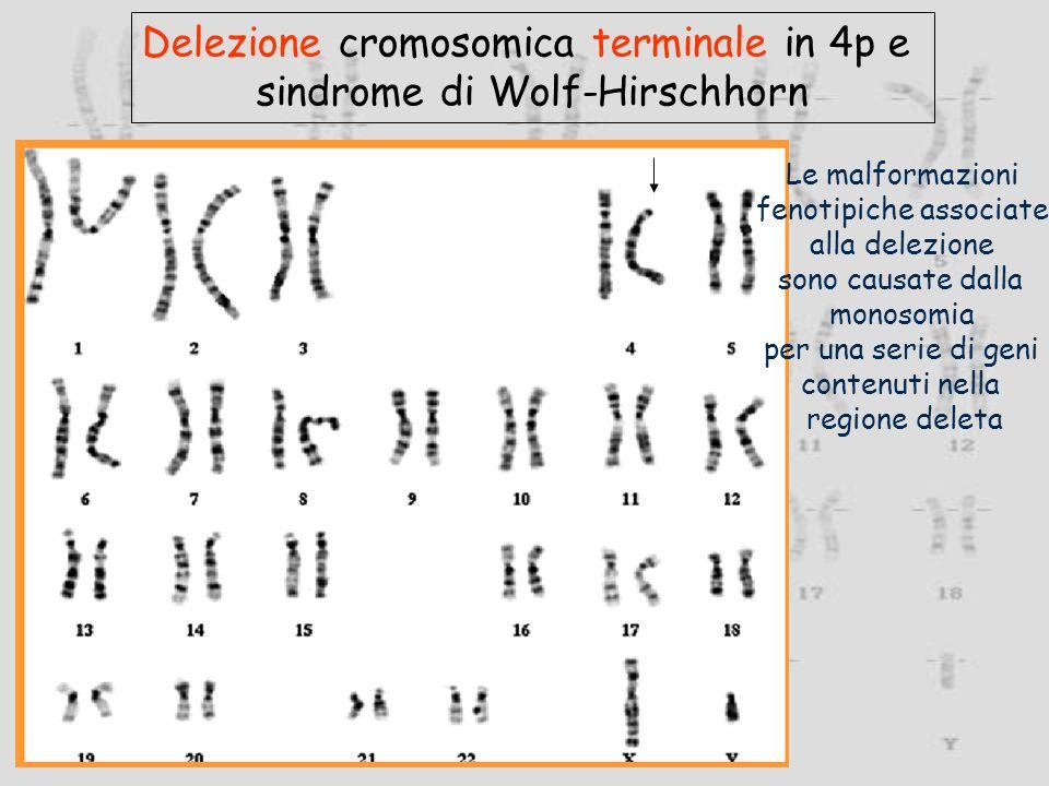 Delezione cromosomica terminale in 4p e sindrome di Wolf-Hirschhorn Le malformazioni fenotipiche associate alla delezione sono causate dalla monosomia