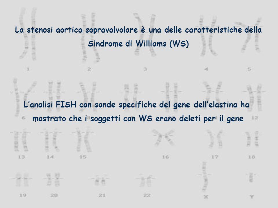 La stenosi aortica sopravalvolare è una delle caratteristiche della Sindrome di Williams (WS) Lanalisi FISH con sonde specifiche del gene dellelastina