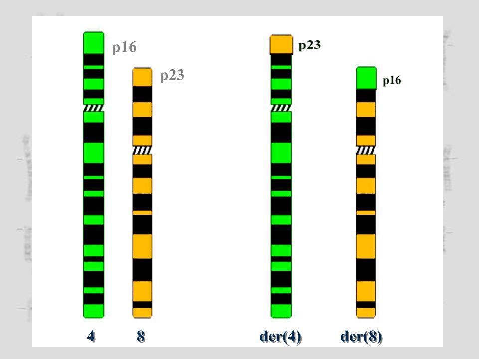 Cariotipo: 45,XX,t(21;21)(p11;p11) I gameti di un portatore di t(21;21) sono o disomici o nullisomici per il cromosoma 21
