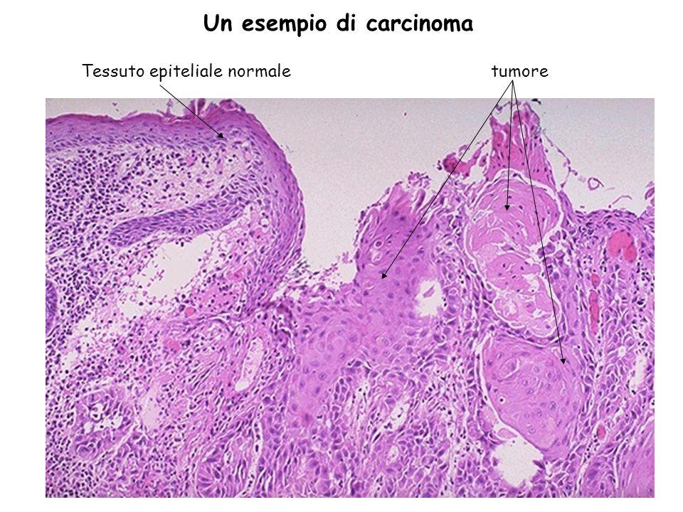 33 tumoreTessuto epiteliale normale Un esempio di carcinoma