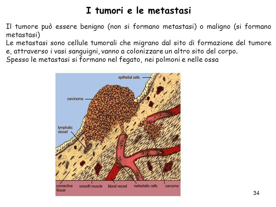 34 Il tumore può essere benigno (non si formano metastasi) o maligno (si formano metastasi) Le metastasi sono cellule tumorali che migrano dal sito di