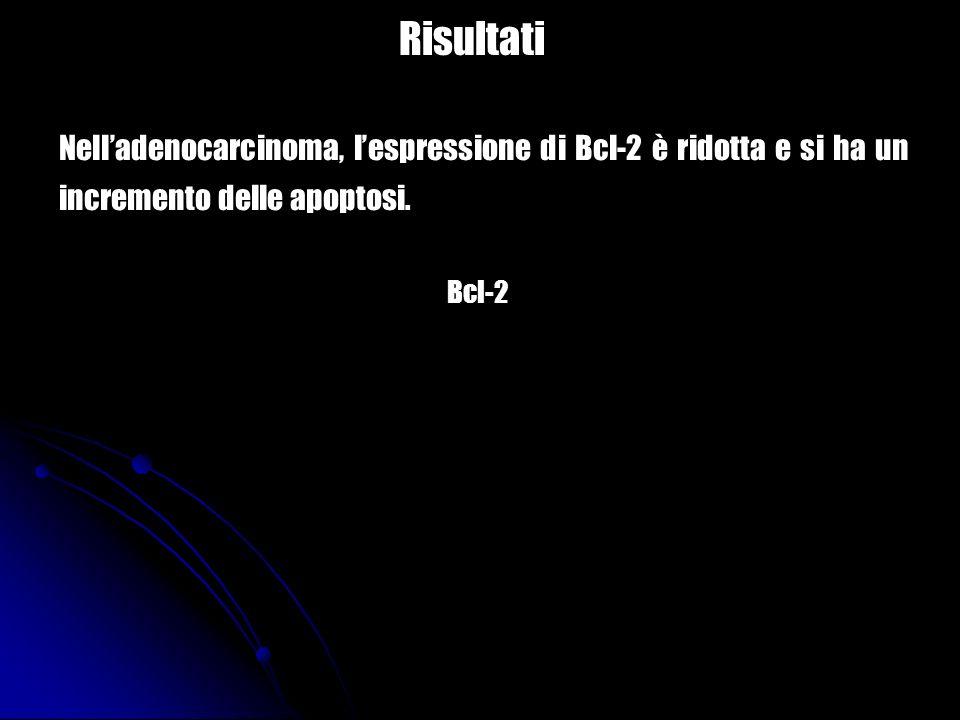 Risultati Bcl-2 Nelladenocarcinoma, lespressione di Bcl-2 è ridotta e si ha un incremento delle apoptosi.