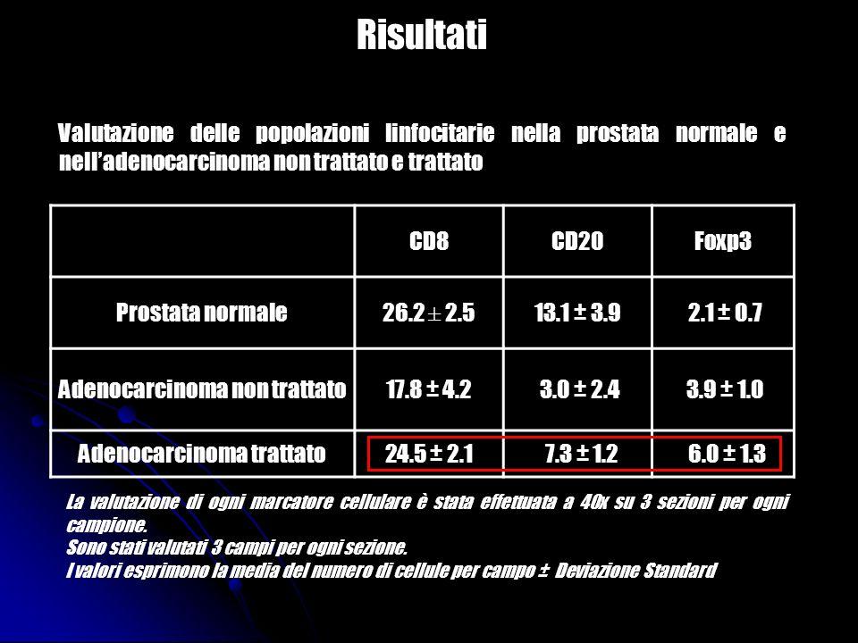 Risultati CD8CD20Foxp3 Prostata normale26.2 ± 2.513.1 ± 3.9 2.1 ± 0.7 Adenocarcinoma non trattato17.8 ± 4.2 3.0 ± 2.4 3.9 ± 1.0 Adenocarcinoma trattat
