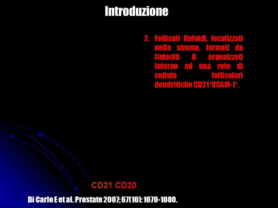 2.Follicoli linfoidi, localizzati nello stroma, formati da linfociti B organizzati intorno ad una rete di cellule follicolari dendritiche CD21 + VCAM-