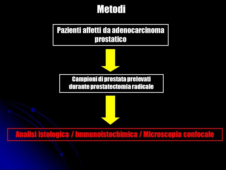 Risultati Nelladenocarcinoma prostatico sono assenti i follicoli linfoidi, che invece sono osservabili nel parechima prostatico sano che circonda la neoplasia.
