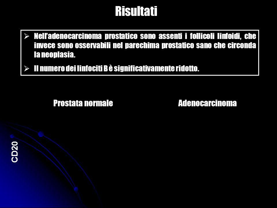 Risultati Nelladenocarcinoma prostatico sono assenti i follicoli linfoidi, che invece sono osservabili nel parechima prostatico sano che circonda la n