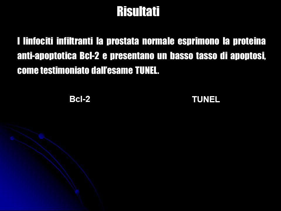 Bcl-2 TUNEL I linfociti infiltranti la prostata normale esprimono la proteina anti-apoptotica Bcl-2 e presentano un basso tasso di apoptosi, come test