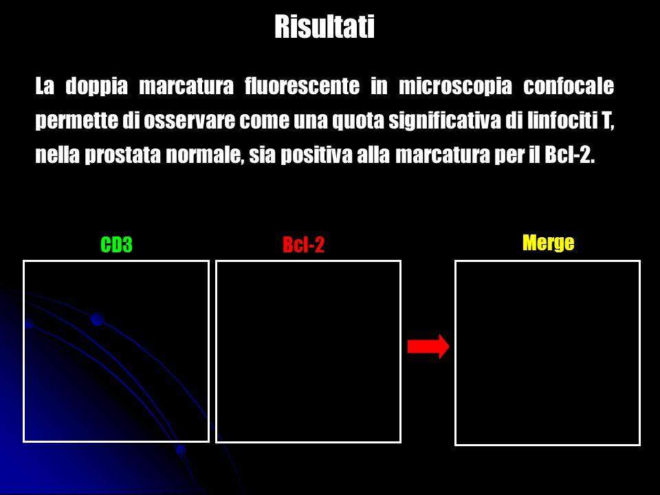 Risultati La doppia marcatura fluorescente in microscopia confocale permette di osservare come una quota significativa di linfociti T, nella prostata