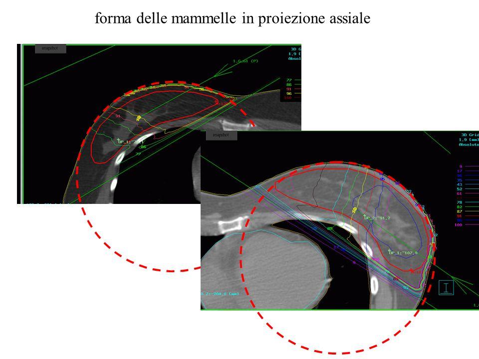 forma delle mammelle in proiezione assiale