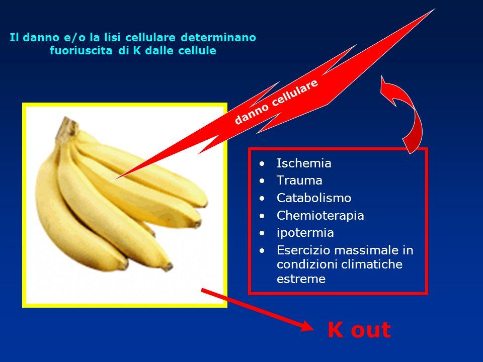 Il danno e/o la lisi cellulare determinano fuoriuscita di K dalle cellule K out Ischemia Trauma Catabolismo Chemioterapia ipotermia Esercizio massimal
