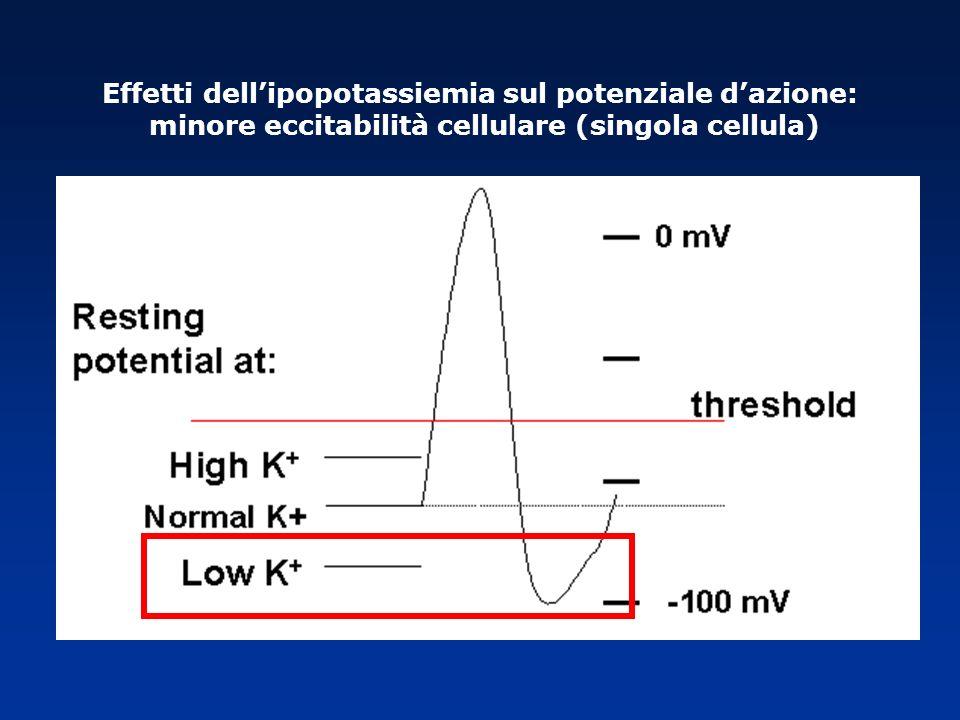 Effetti dellipopotassiemia sul potenziale dazione: minore eccitabilità cellulare (singola cellula)