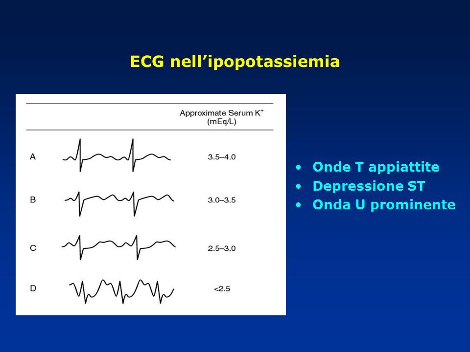 Onde T appiattite Depressione ST Onda U prominente ECG nellipopotassiemia