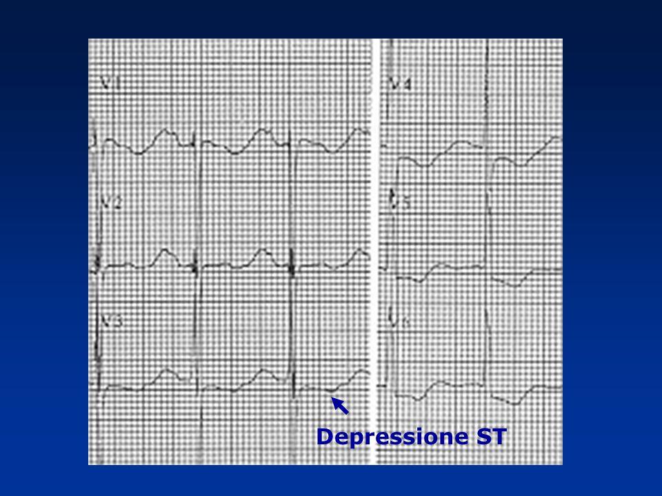 Depressione ST
