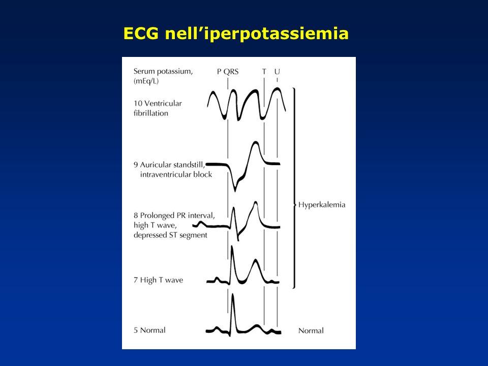 ECG nelliperpotassiemia