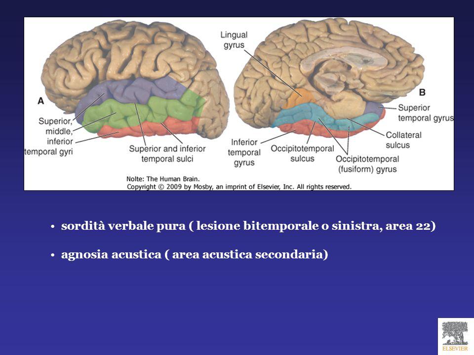sordità verbale pura ( lesione bitemporale o sinistra, area 22) agnosia acustica ( area acustica secondaria)
