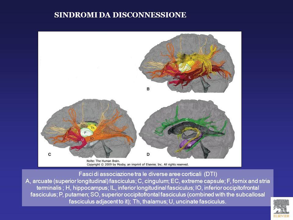 Fasci di associazione tra le diverse aree corticali (DTI) A, arcuate (superior longitudinal) fasciculus; C, cingulum; EC, extreme capsule; F, fornix a