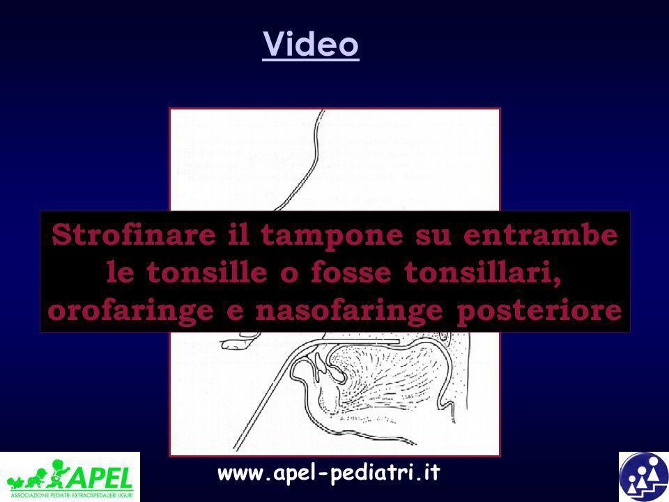 www.apel-pediatri.it Strofinare il tampone su entrambe le tonsille o fosse tonsillari, orofaringe e nasofaringe posteriore Video