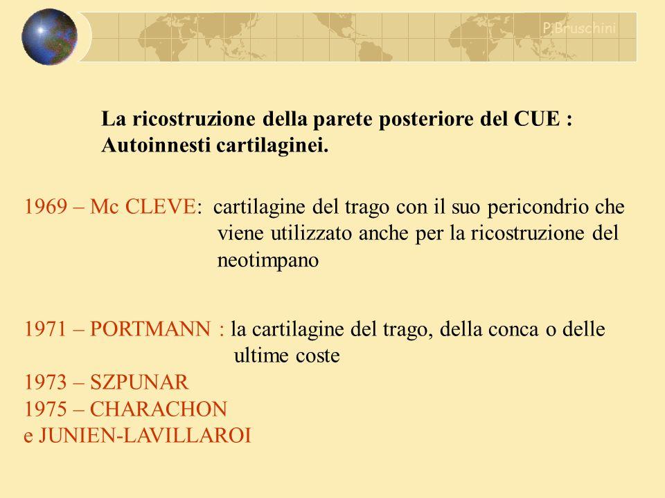 La ricostruzione della parete posteriore del CUE : Autoinnesti cartilaginei. 1969 – Mc CLEVE: cartilagine del trago con il suo pericondrio che viene u