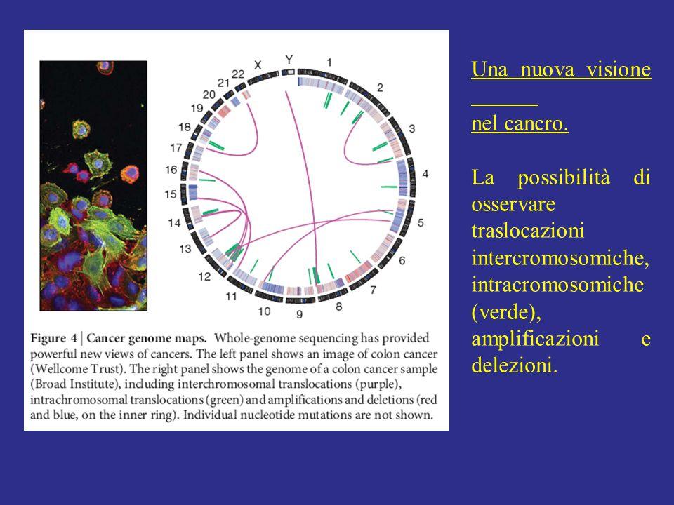 Una nuova visione nel cancro. La possibilità di osservare traslocazioni intercromosomiche, intracromosomiche (verde), amplificazioni e delezioni.