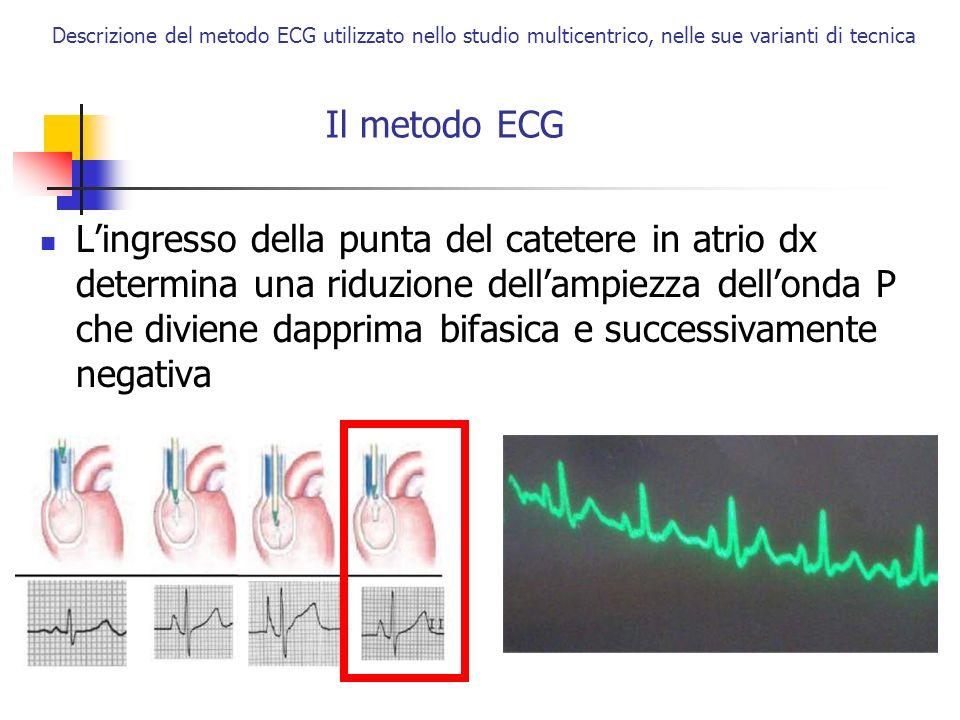 Descrizione del metodo ECG utilizzato nello studio multicentrico, nelle sue varianti di tecnica Il metodo ECG Lingresso della punta del catetere in at