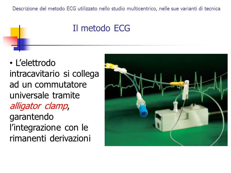 Il metodo ECG Descrizione del metodo ECG utilizzato nello studio multicentrico, nelle sue varianti di tecnica Lelettrodo intracavitario si collega ad
