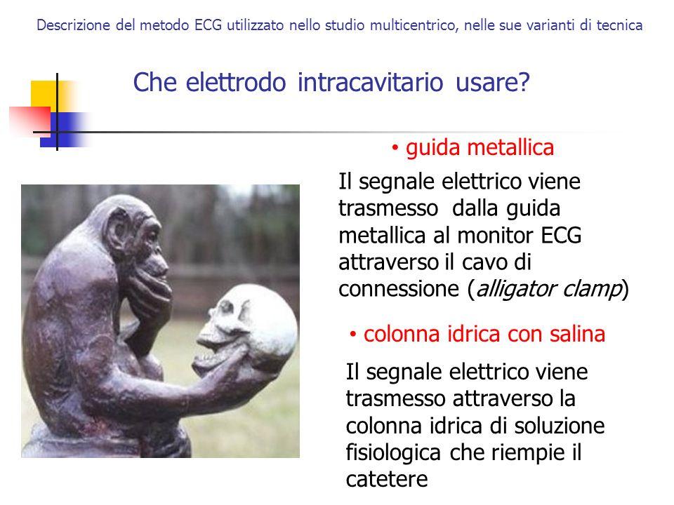 Che elettrodo intracavitario usare? Descrizione del metodo ECG utilizzato nello studio multicentrico, nelle sue varianti di tecnica guida metallica Il