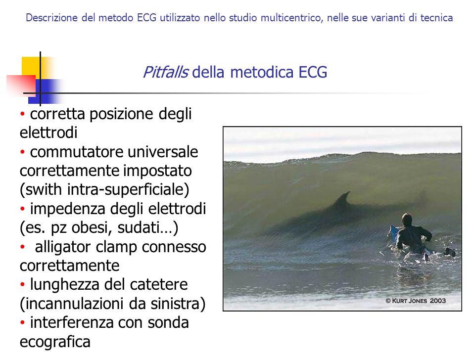 Descrizione del metodo ECG utilizzato nello studio multicentrico, nelle sue varianti di tecnica Pitfalls della metodica ECG corretta posizione degli e