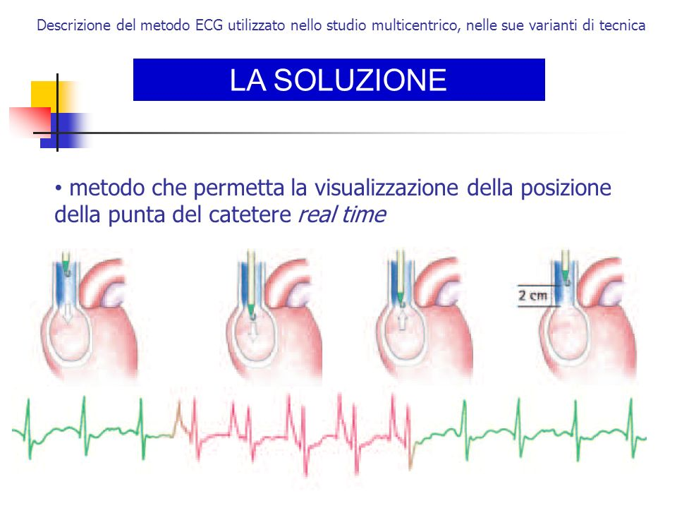 LA SOLUZIONE Descrizione del metodo ECG utilizzato nello studio multicentrico, nelle sue varianti di tecnica metodo che permetta la visualizzazione de