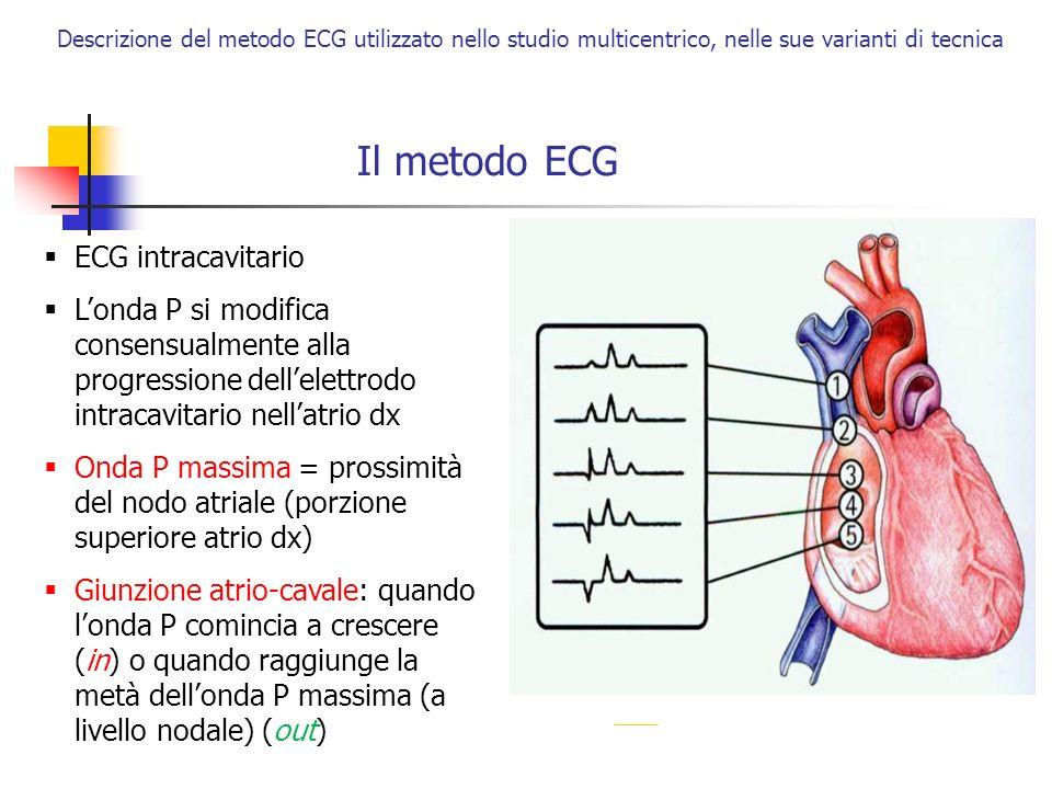 Descrizione del metodo ECG utilizzato nello studio multicentrico, nelle sue varianti di tecnica D II è la derivazione consigliata: - parallela allasse di depolarizzazione atriale - massima visualizzazione onda P Il metodo ECG