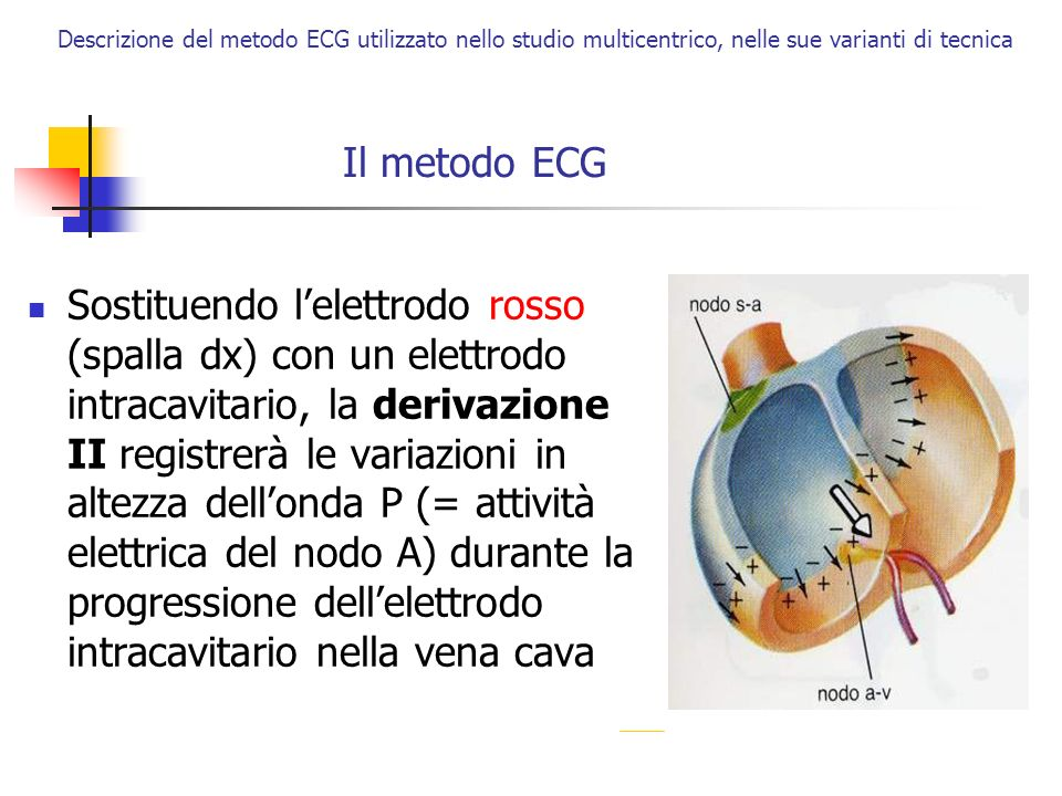 Descrizione del metodo ECG utilizzato nello studio multicentrico, nelle sue varianti di tecnica Il metodo ECG Gli elettrodi vanno posizionati accuratamente rosso: fossa clavicolare dx giallo: fossa clavicolare sin verde: altezza cresta iliaca, in corrispondenza gamba sin