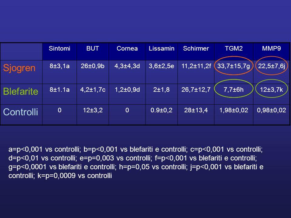 SintomiBUTCorneaLissaminSchirmerTGM2MMP9 Sjogren 8±3,1a26±0,9b4,3±4,3d3,6±2,5e11,2±11,2f33,7±15,7g22,5±7,6j Blefarite 8±1.1a4,2±1,7c1,2±0,9d2±1,826,7±