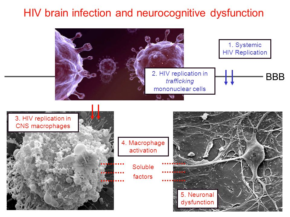 HIV brain infection and neurocognitive dysfunction 4. Macrophage activation 5. Neuronal dysfunction 1. Systemic HIV Replication Soluble factors 3. HIV