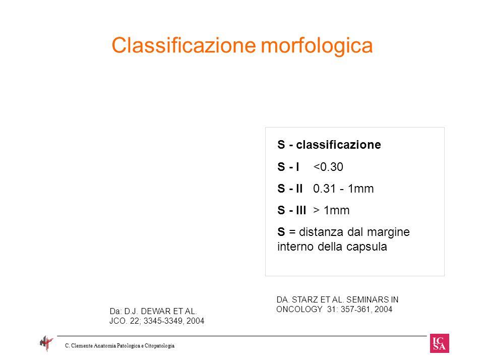Classificazione morfologica Da: D.J. DEWAR ET AL. JCO. 22; 3345-3349, 2004 S - classificazione S - I <0.30 S - II 0.31 - 1mm S - III > 1mm S = distanz