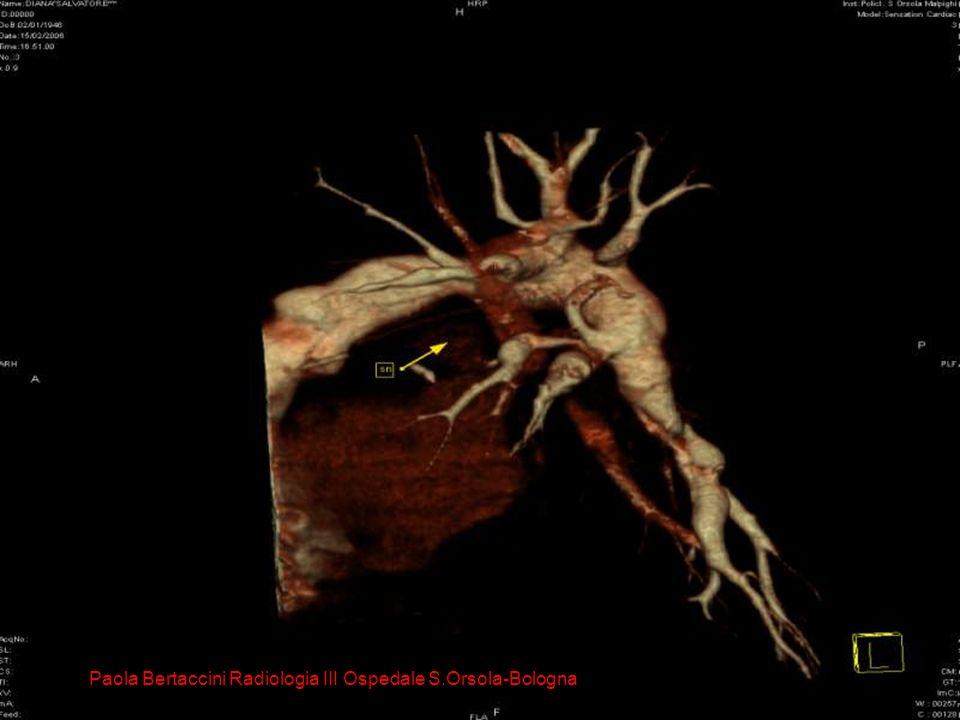 Arterie bronchiali Paola Bertaccini Radiologia III Ospedale S.Orsola-Bologna