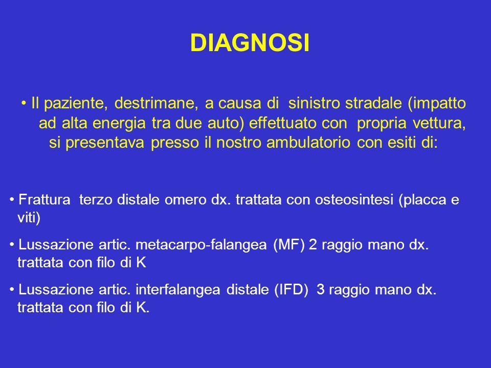 RISULTATI Valutazione dopo 20 trattamenti Gomito dx: fless.115°/est.