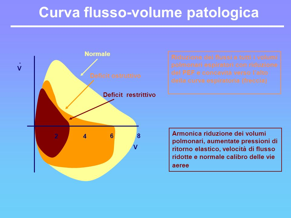 Curva flusso-volume patologica V 24 6 Deficit ostruttivo Normale Armonica riduzione dei volumi polmonari, aumentate pressioni di ritorno elastico, vel