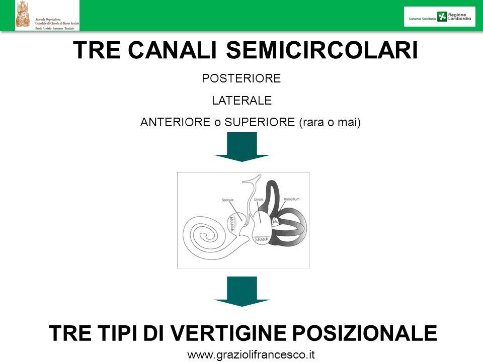 TRE CANALI SEMICIRCOLARI POSTERIORE LATERALE ANTERIORE o SUPERIORE (rara o mai) TRE TIPI DI VERTIGINE POSIZIONALE www.graziolifrancesco.it