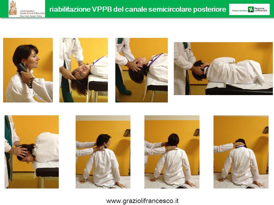 riabilitazione VPPB del canale semicircolare posteriore manovra di Epley www.graziolifrancesco.it