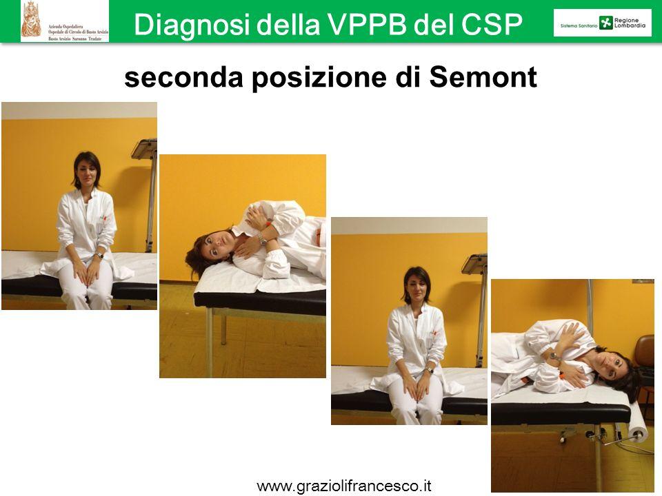 seconda posizione di Semont Diagnosi della VPPB del CSP www.graziolifrancesco.it
