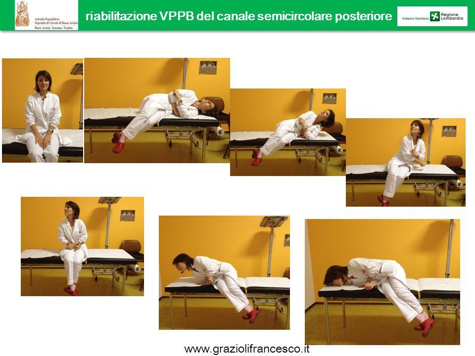 riabilitazione VPPB del canale semicircolare posteriore manovra di Semont www.graziolifrancesco.it