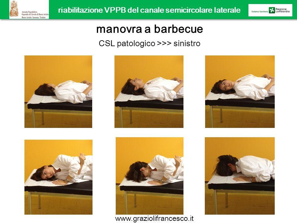 riabilitazione VPPB del canale semicircolare laterale manovra a barbecue CSL patologico >>> sinistro www.graziolifrancesco.it