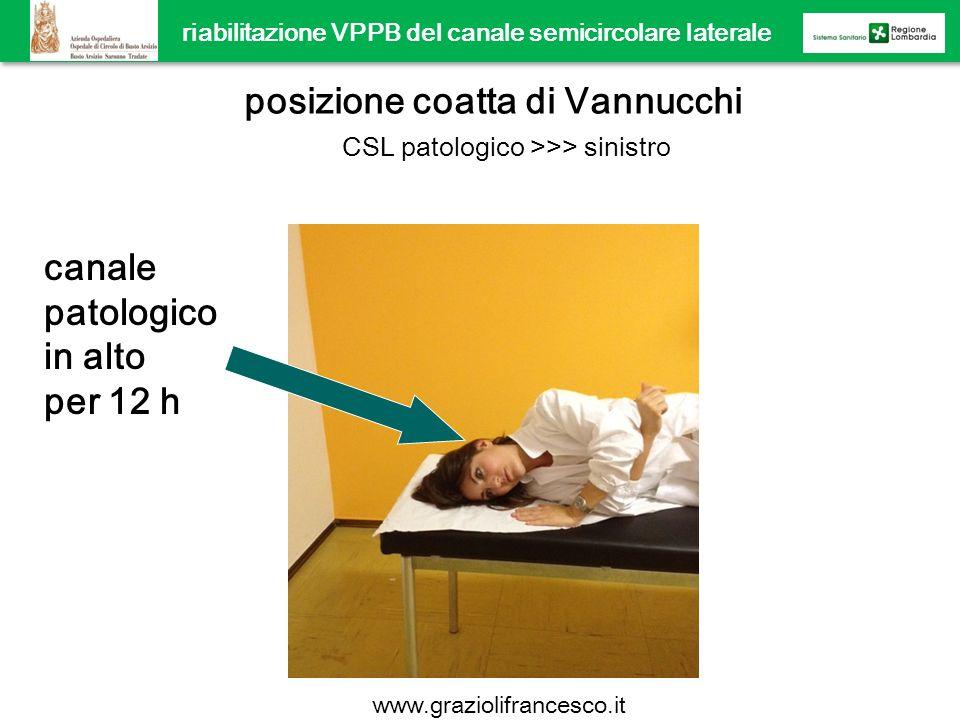 riabilitazione VPPB del canale semicircolare laterale posizione coatta di Vannucchi CSL patologico >>> sinistro canale patologico in alto per 12 h www